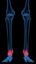 xray_ankle-ventrilock_125